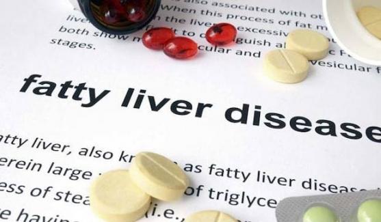 Yağlı Karaciğer Hastalığı İçin 7 En İyi Doğal Tedavi