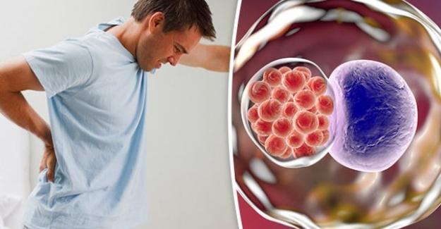 Mesane Kanseri Belirtileri Yaşam Süresi Tedavisi