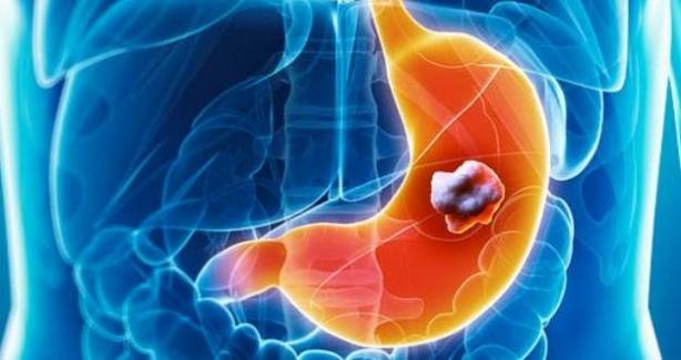 Mide Kanseri Tetikleyebilecek 4 Alışkanlık