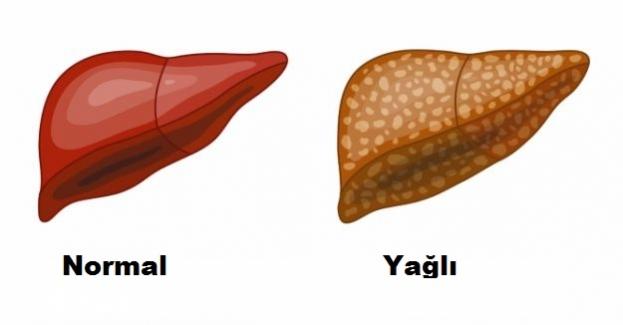 Karaciğer Yağlanması Belirtileri, Neden olur? Nasıl Tedavi Edilir?