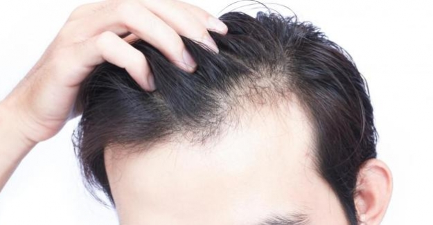 Neden Saç Dökülmesini Göz Ardı Etmemelisiniz?