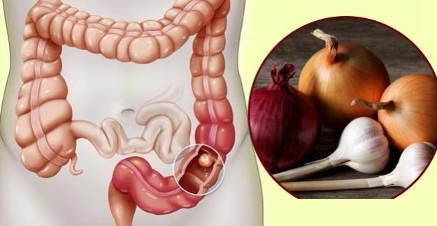Soğan ve Sarımsak Kolorektal Kanser Riskini Düşürebilir
