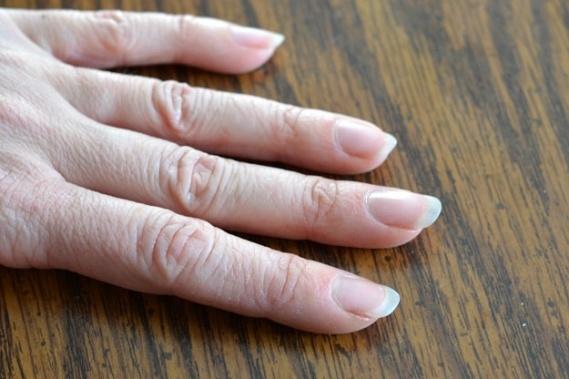 Çatlamış Tırnak Eti ve Kuru Eller İçin Evde Doğal Çözüm