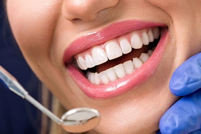 Zirkonyum nedir ve nasıl yapılır? Zirkonyum diş tedavisinin maliyeti nedir?