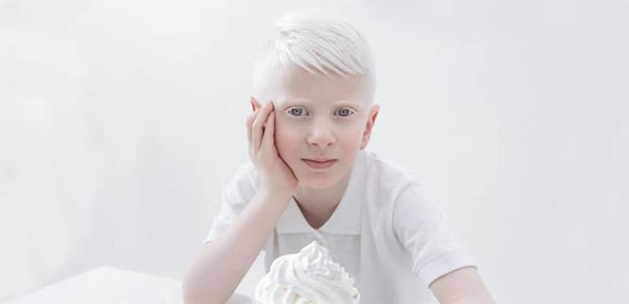 Albinizm nedir? Albinizm neden oluşur? Albinolar ne kadar yaşar?