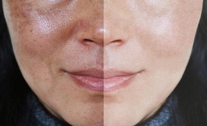 Cilt Gözeneklerini Kalıcı Olarak Kurtulmak İçin Hızlı ve Kolay Ev Maskesi