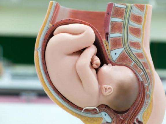 Alexander Doğum Tekniği Nedir?
