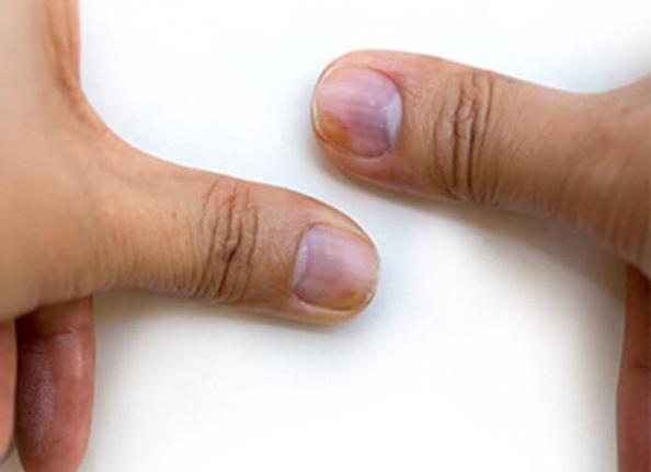 Tırnak Anormallikleri Sağlığınız Hakkında Ne Diyor?