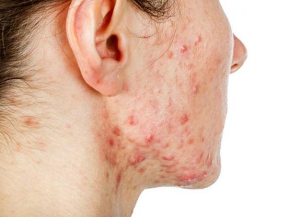 Kistik Akne İçin 6 Etkili Ev Tedavisi
