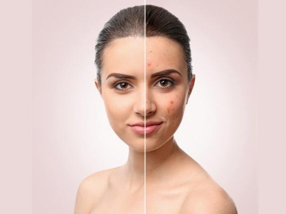 Makyajla Akne İzleri Nasıl Gizlenir