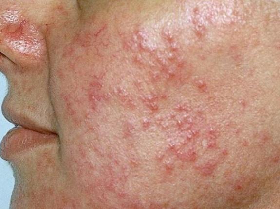 Yüzde Gül hastalığının (Rosacea) İçin En Etkili 12 Ev Çaresi