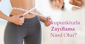 Akupunktur İle Zayıflama