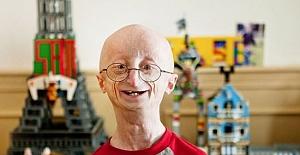 Progeria Nedir? Belirtileri Nelerdir?