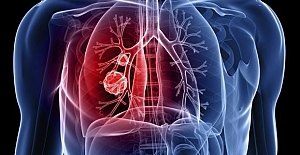 Akciğer kanseri nedir? Akciğer kanseri nedenleri nelerdir?
