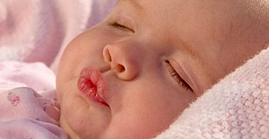Bebeklerde Dudak Çatlaması Neden Olur? Nasıl Tedavi Edilir?