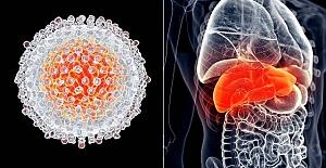 Karaciğer Kanseri Belirtileri Nedenleri Ne Kadar Yaşar? Kurtulma oranı