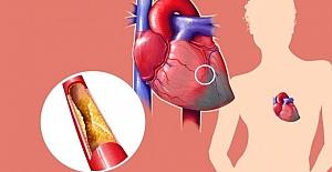 Kolesterol Hakkında 8 Şaşırtıcı...