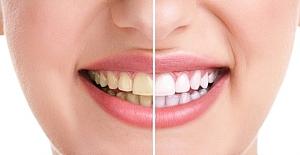 Dört Şaşırtıcı Diş Dostu Yiyecekler