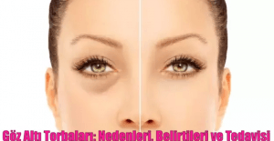 Göz Altı Torbaları: Nedenleri, Belirtileri ve Tedavisi | KADINPOST