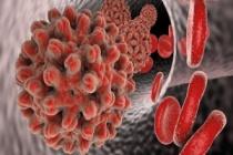 Hepatit C Virüsünün Belirtileri