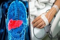 Karaciğer Kanseri Belirtileri Detaylı Anlatım