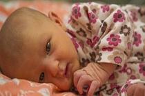 Yeni Doğan Sarılığı Nedir? Bebeklerde Sarılık Derecesi? Bilirubin Çizelgesi