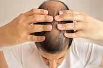 Doğal Saç Nasıl Uzatılır? Doğal Saç Uzatma Yöntemleri