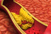 Arterlerinizi Doğal Olarak Temizleyen 7 Gıda