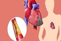 Kolesterol Hakkında 8 Şaşırtıcı Gerçek