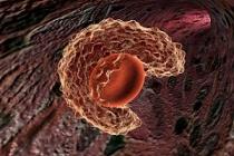 Kemik İliği Kanserinin Nedenleri Nelerdir?