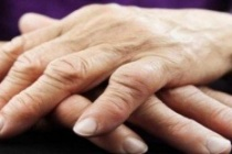Eklem romatizması nedir? Eklem romatizması tedavisi nasıl olur?