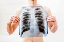 Koronavirüs akciğerleri nasıl etkiler