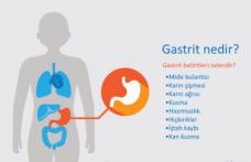 Gastrit nedir? Gastritin belirtileri nelerdir? Gastritin tedavisi var mıdır?