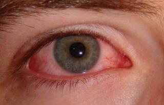 Göz nezlesi (konjoktivit) nedir? Göz nezlesi belirtileri...