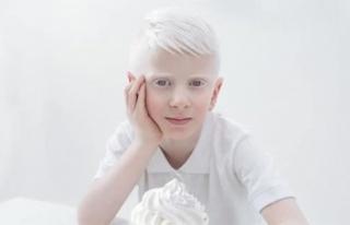 Albinizm nedir? Albinizm neden oluşur? Albinolar...