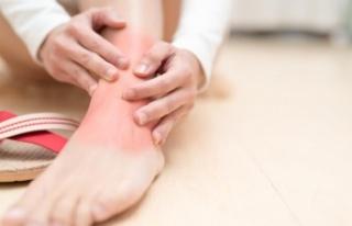 Romatoid Artrit nedir? Romatoid Artrit Ayak Bileğini...