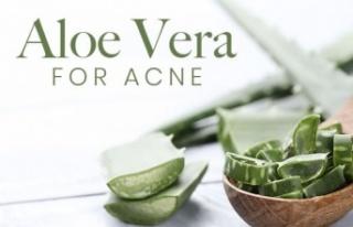 Sivilce Sorunu İçin Aloe Vera: Tedavi Etmek İçin...