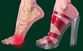 Topuklu Ayakkabı Giymek Sadece Ayaklarınıza Zarar Vermez