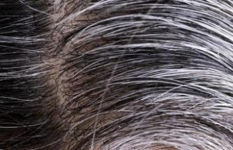 Beyaz Saçları Azaltmanın Kolay ve Etkili 8 Doğal Yolu!