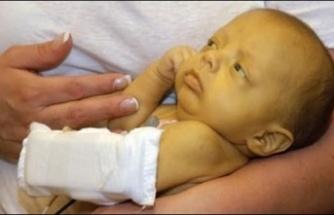 Yenidoğan Sarılığı: Bebeğim Neden Sarı?