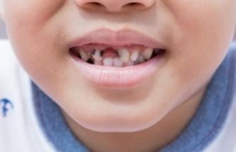 Çocuklarınızın Dişleri Risk Altında! Nasıl Koruma Sağlanır