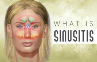Sinüzit Nedir? Sebepler, Belirtiler, Risk Faktörleri, Tanı ve Tedavisi
