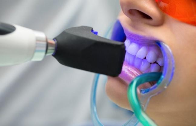 Dişlerin Sarı Görünmesine Neden Olan Nedir? Diş Beyazlatma İçin 17 Ev Çözümü