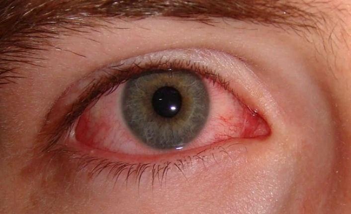 Göz nezlesi (konjoktivit) nedir? Göz nezlesi belirtileri ve tedavisi…