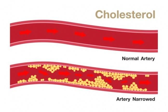 İlaç Kullanmadan Kolesterolünüzü Nasıl Azaltabilirsiniz?