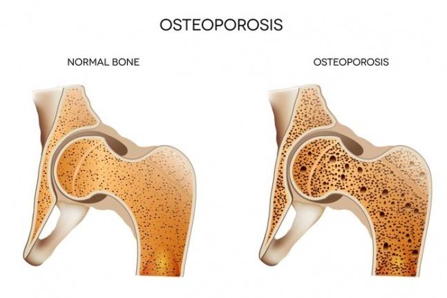 Osteoporoz Neden Kadınlarda Daha Sık Görülür?